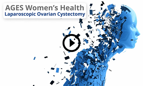 Ovarian Cyst video