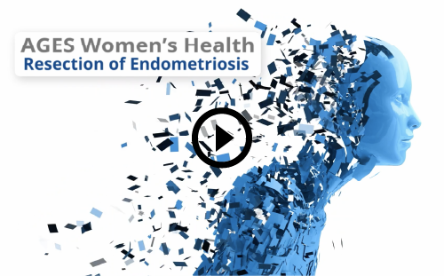 Resection of Endometriosis video